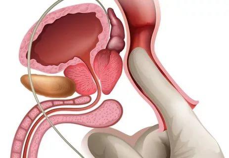 Где болит простата при дефекации?