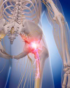 Болевые симптомы в ногах при простатите