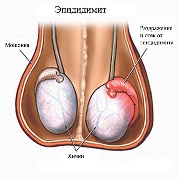 могут ли болеть яйца у мужчин от простатита
