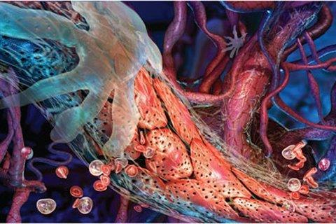 Узелковый полиартериит