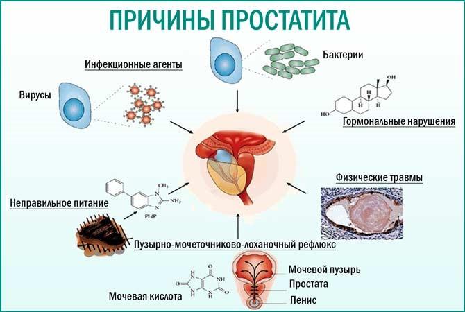 Простатит в активной фазе лука от простатита
