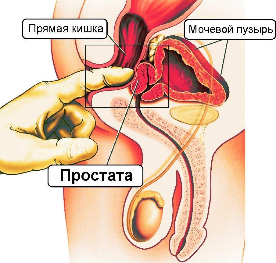 Принцип действия массажа при болях в предстательной железе у мужчин