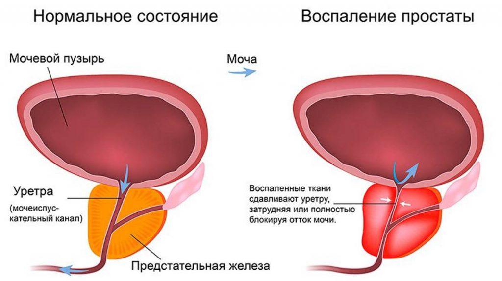 Цистит и хронический простатит у мужчин может ли простатит передаваться по наследству