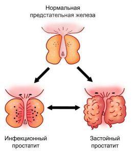 Инфекционный вид простатита