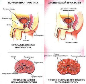 Виды простатита по форме протекания