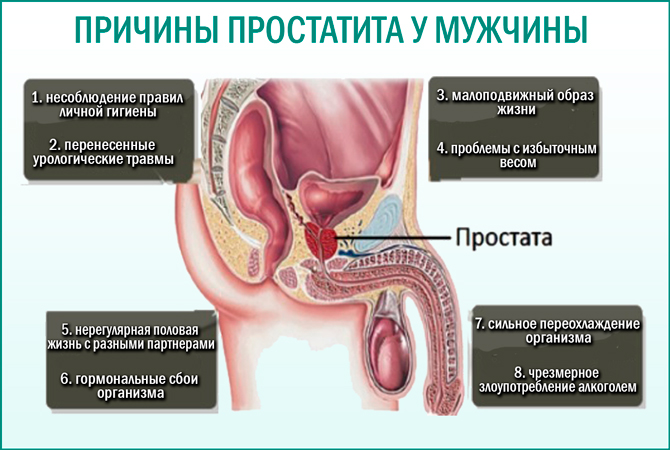 Простатит причины форум чем лечат простатита у мужчин лекарства