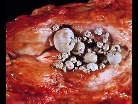 Калькулезный вид простатита