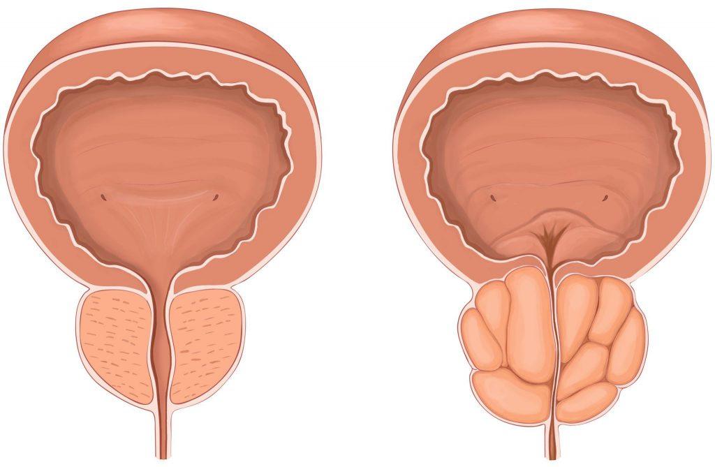 Схема: слева— простата в норме, справа— состояние органа при аденоме