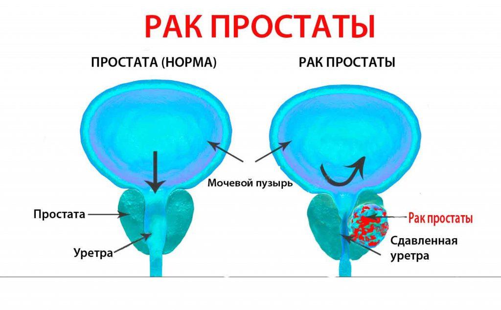 Схема: рак простаты