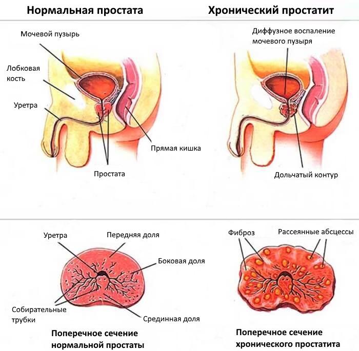 Сравнительные схемы: нормальная простата и хронический простатит