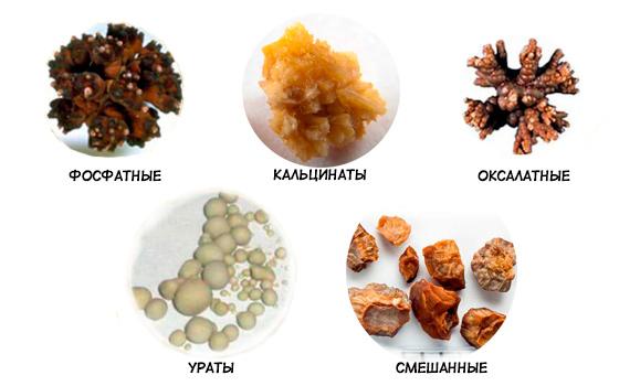 Разновидности камней, образующихся в органах мочеполовой системы