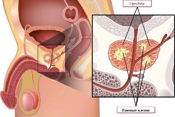 Схема расположения простаты при процедуре гармонотерапии