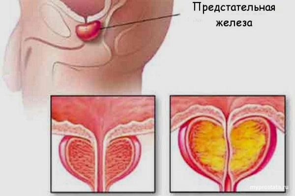 простата рецидив