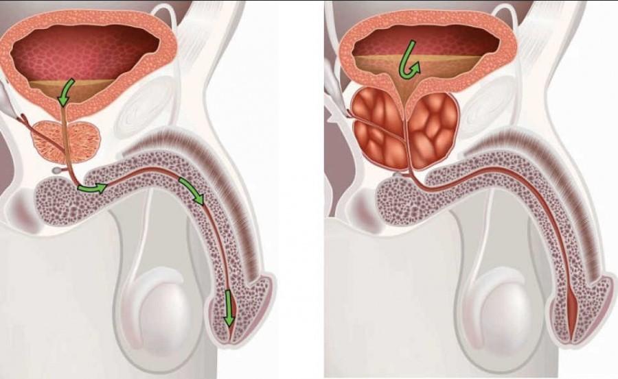 Расчет объема предстательной железы по узи 15